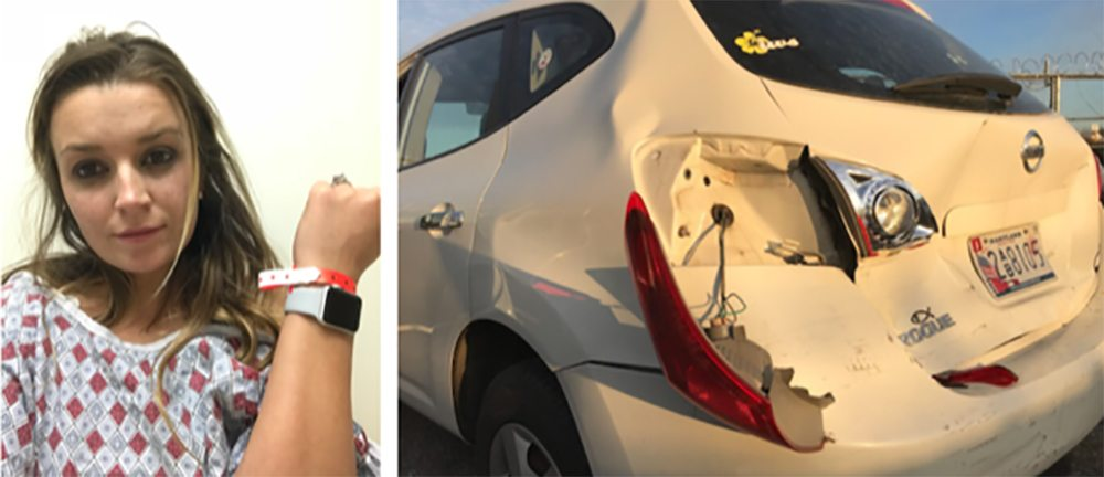 Apple Watch Car Accident Shape