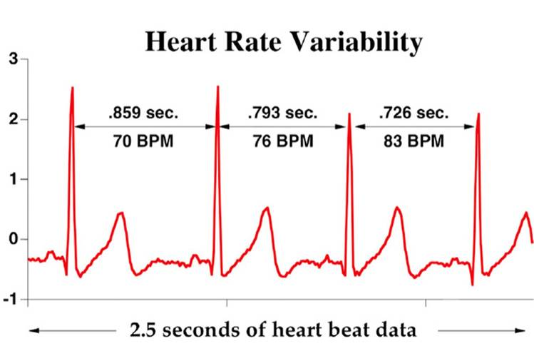 How To Measure Hrv Apple Watch 1