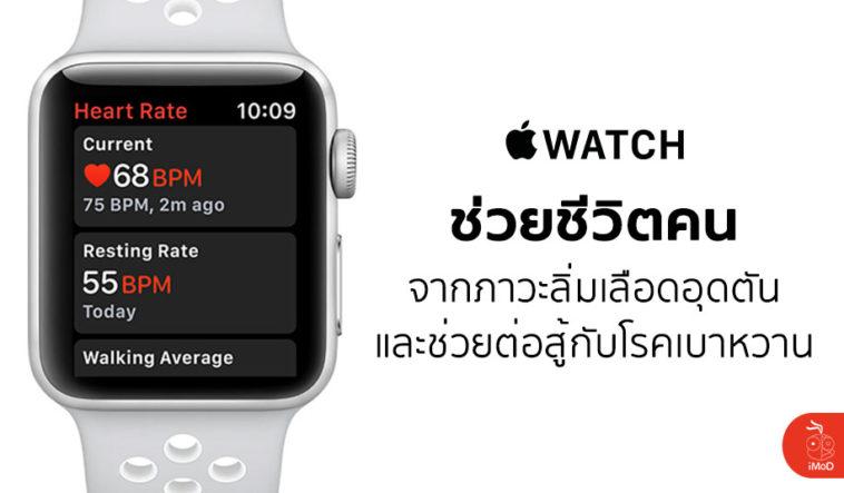 Apple Watch Save Life Blood Clots