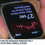 Apple Watch Series 4 Ecg Detect Patient Afib