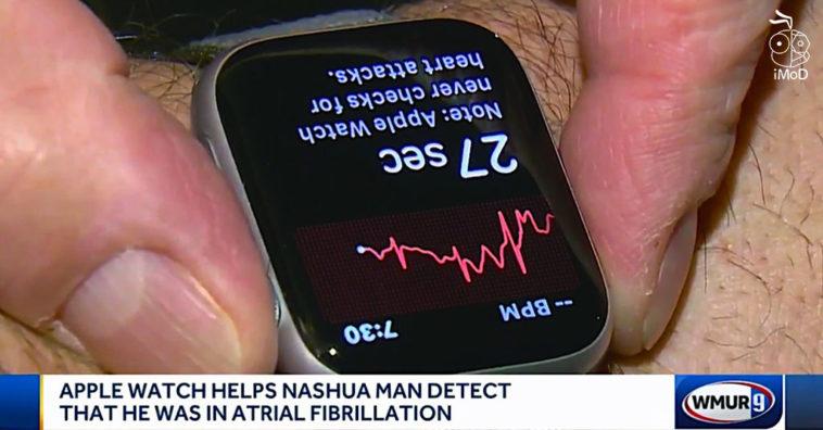 Apple Watch Series 4 Ecg Detect Patient Afib