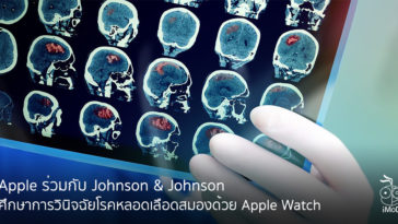 Johnson And Johnson Study With Apple For Detect Stroke From Apple Watch