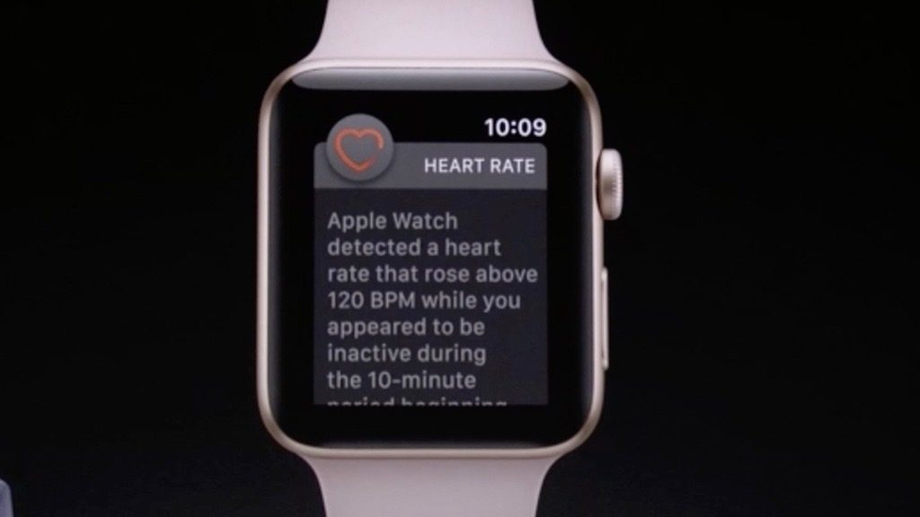 Apple Watch Save Reddit User High Heart Rate Alert 1