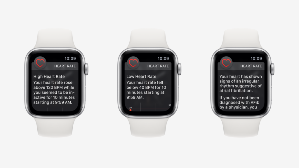 Apple Watch Save Reddit User High Heart Rate Alert 2