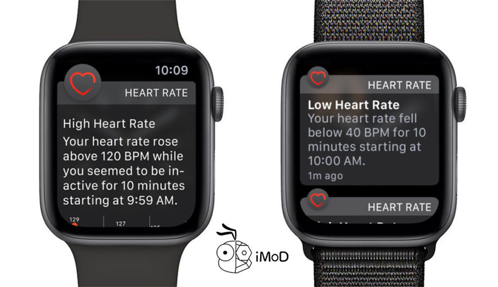 Apple Watch Health Feature 2