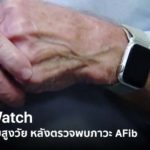 Apple Watch Save Old Man Texas 79 Yeas Old Afib Notification