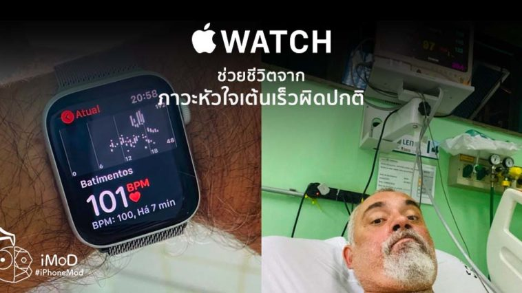Apple Watch Save Brazil Man Life From Tachycardia