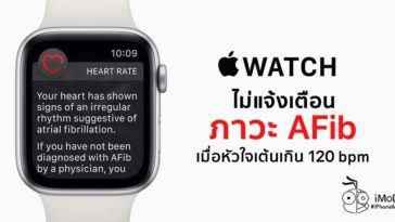 Apple Watch Not Defect Afib If Heart Rate Over 120 Bpm